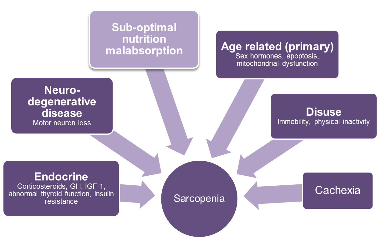 overview of sarcopenia Sarcopenia is one of the four main reasons for loss of muscle mass on average, it is estimated that 5-13% of elderly people aged 60-70 years are affected by sarcopenia the numbers increase to 11-50% for those aged 80 or above.
